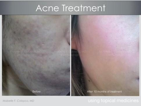 Dermalogique acne skincare 0110.jpeg