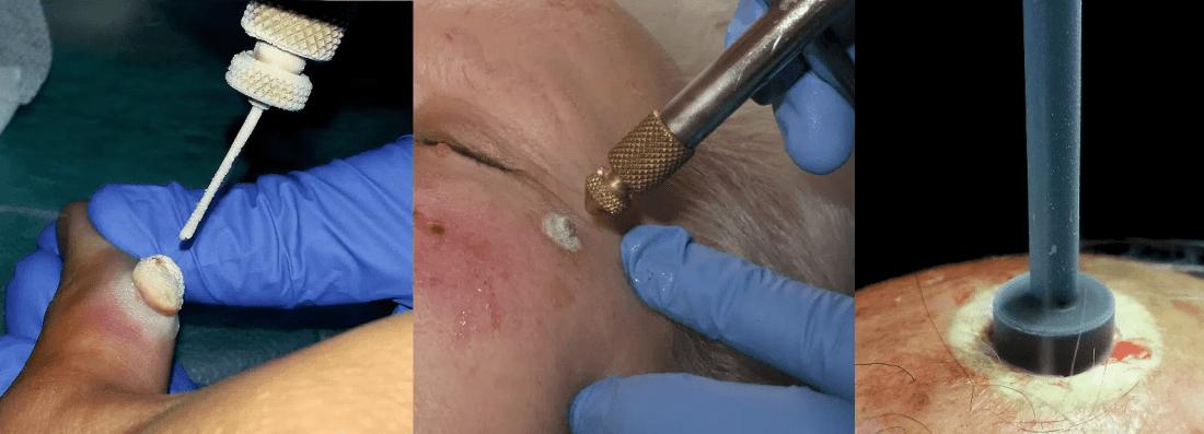 Criocirugía usada como terapia curativa de tumores malignos y no-malignos