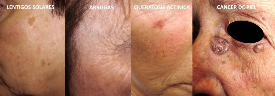 El exceso de sol puede causar diversas enfermedades de la piel: léntigos, arrugas prematuras, queratosis actínica y hasta cáncer de piel.