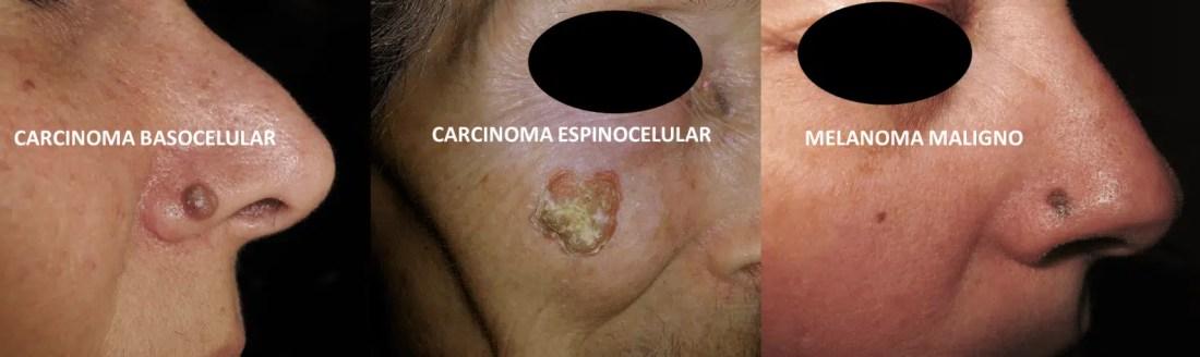 Diferentes tipos de cáncer de piel