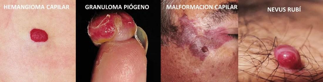 Diversos tipos de hemangiomas