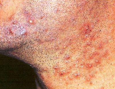 Resultado de imagen para foliculitis multiple de la barba