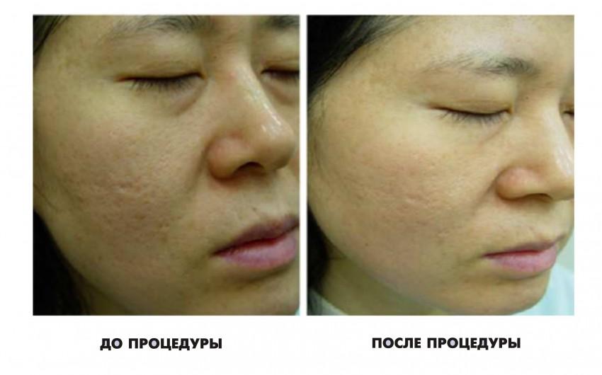 Hogyan kell eltávolítani a pattanások jelek származó zsíros bőrre