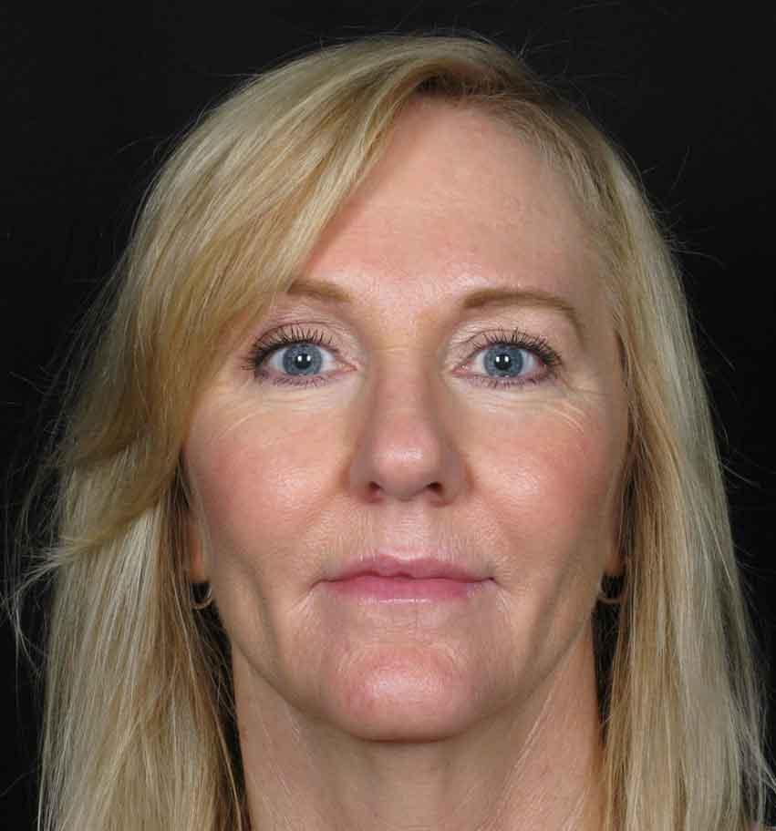 After-Facial Filler