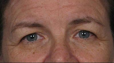 Before-Eyelid Surgery - Blepharoplasty