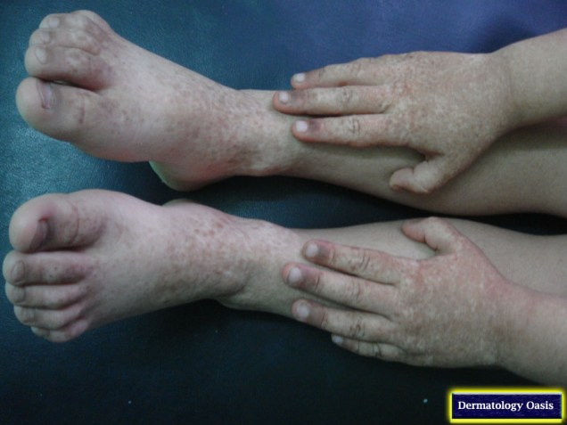 Reticulate acropigmentation of Dohi