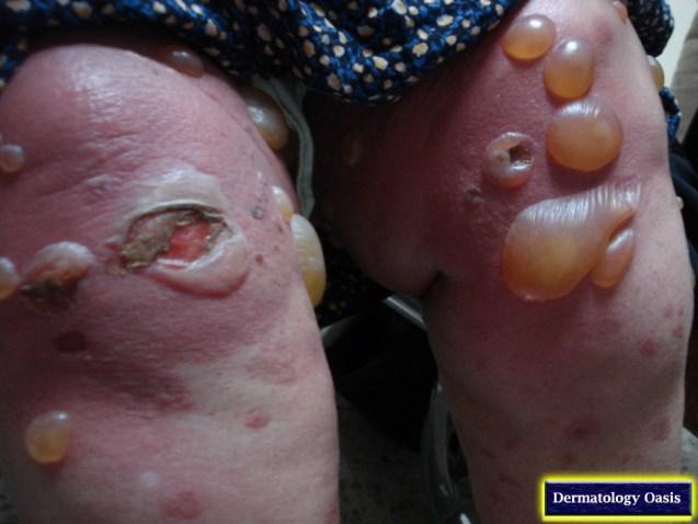 Bullous pemphigoid