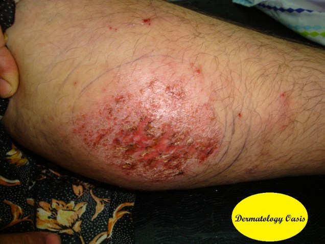Impetiginized discoid eczema
