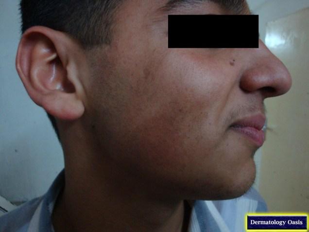 Erythromelanosis Follicularis Faciei et Colli
