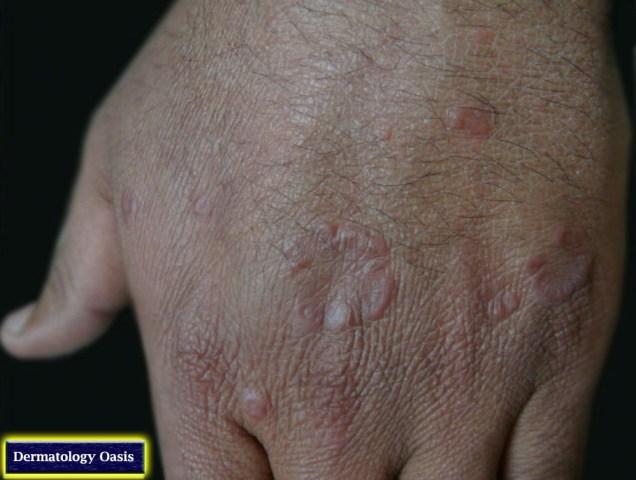 Granuloma annularae