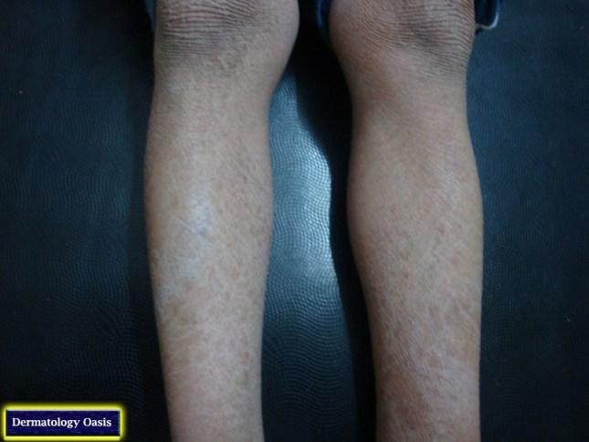 Ichthyosis vulgaris3