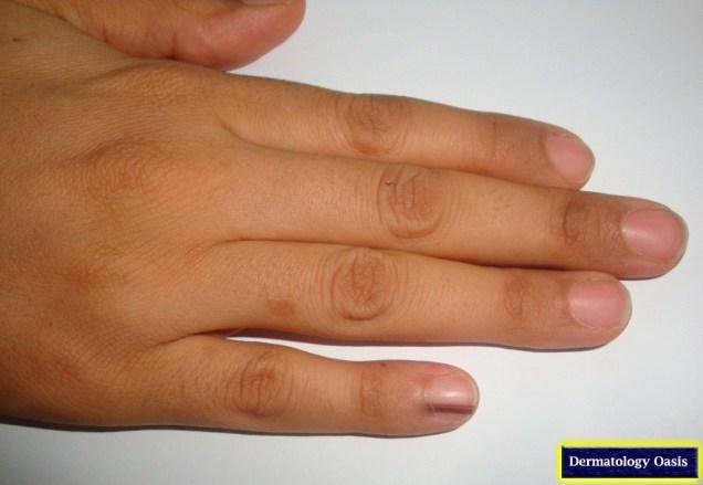 Longitudinal melanonychia