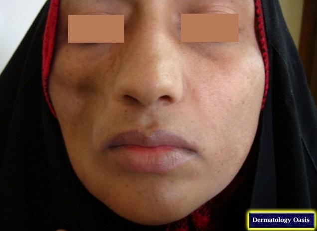 Lupus profundus