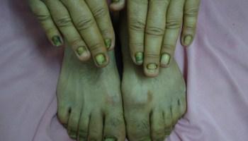Ingrown toe nail | Dermatology Oasis