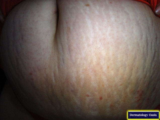 Striae gravidarum