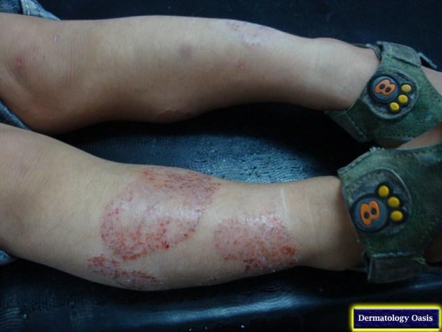Discoid eczema