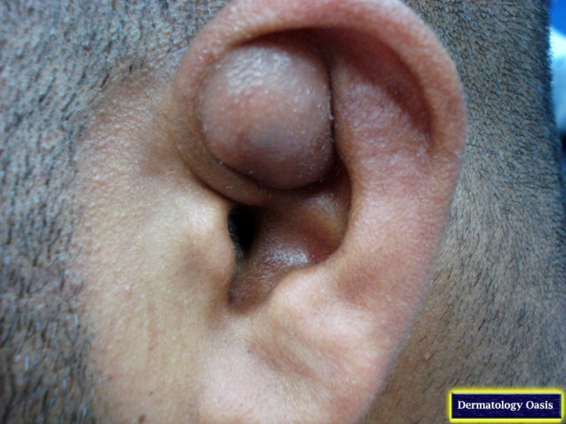 Pseudocyst of the auricle