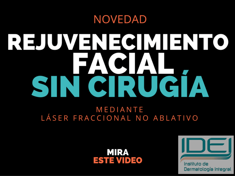 rejuvenecimiento-facial-sin-cirugía.con-laser