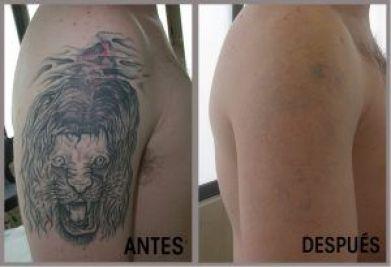 foto antes y despues eliminacion tatuajes