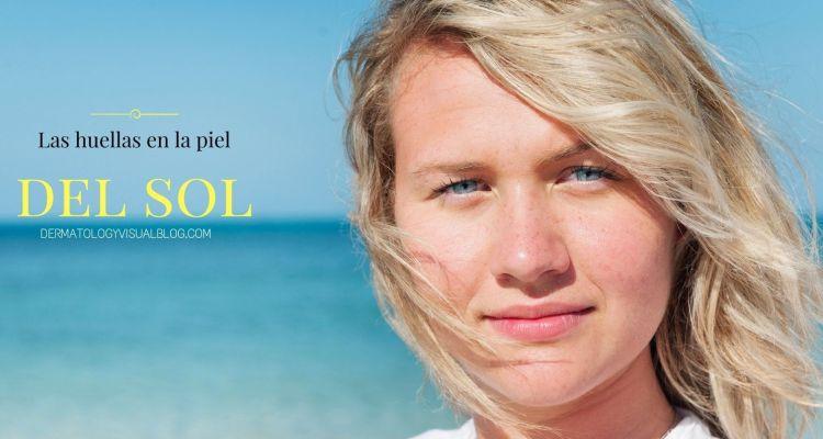Cómo proteger la piel para evitar la aparición de manchas y arrugas