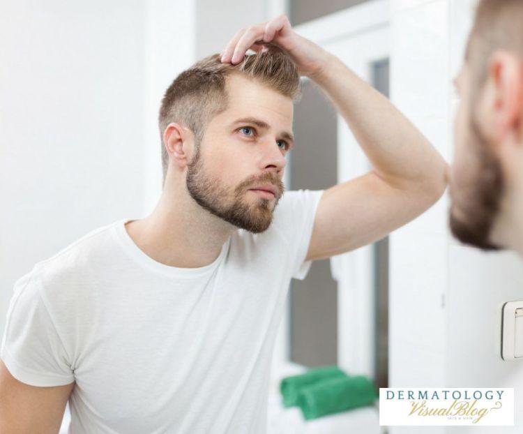los hombres calvos tienen más testosterona