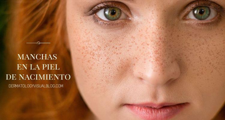 Manchas de nacimiento en la piel. Qué son y qué cuidados necesitan