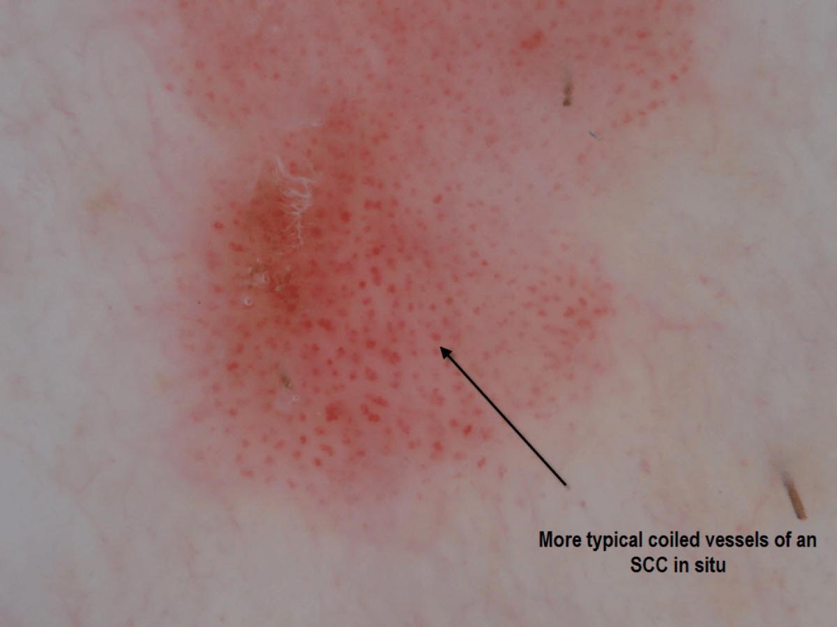 Ficha 17: Dermatoscopia en Carcinoma Espinocelular