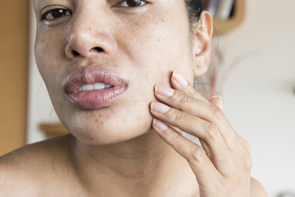 reasons for dry skin on face