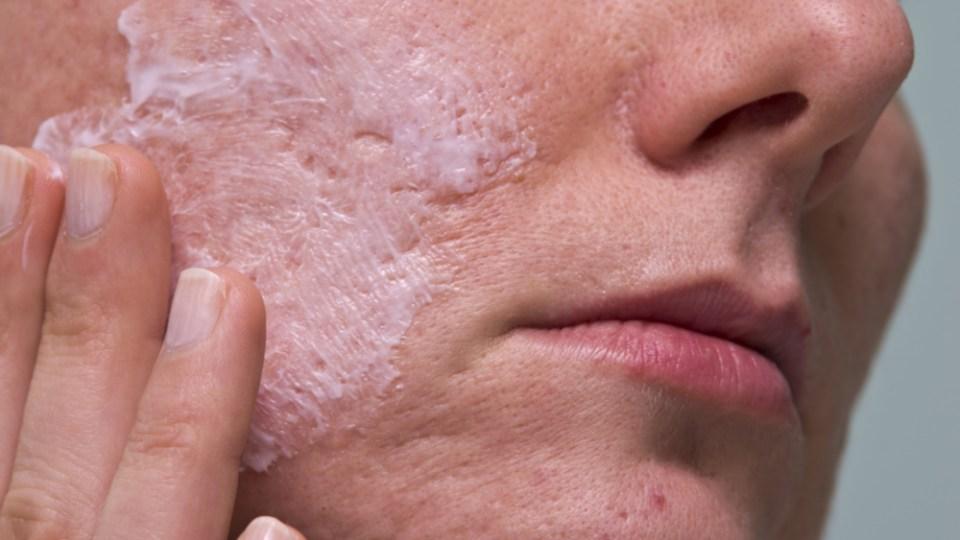 Vitamin C for acne scars