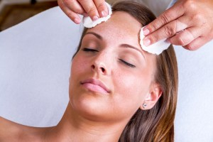 chemical peels for hyperpigmentation