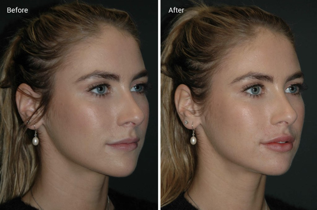 Lip Fillers: How Long They Last, Before & Afters, Side ...