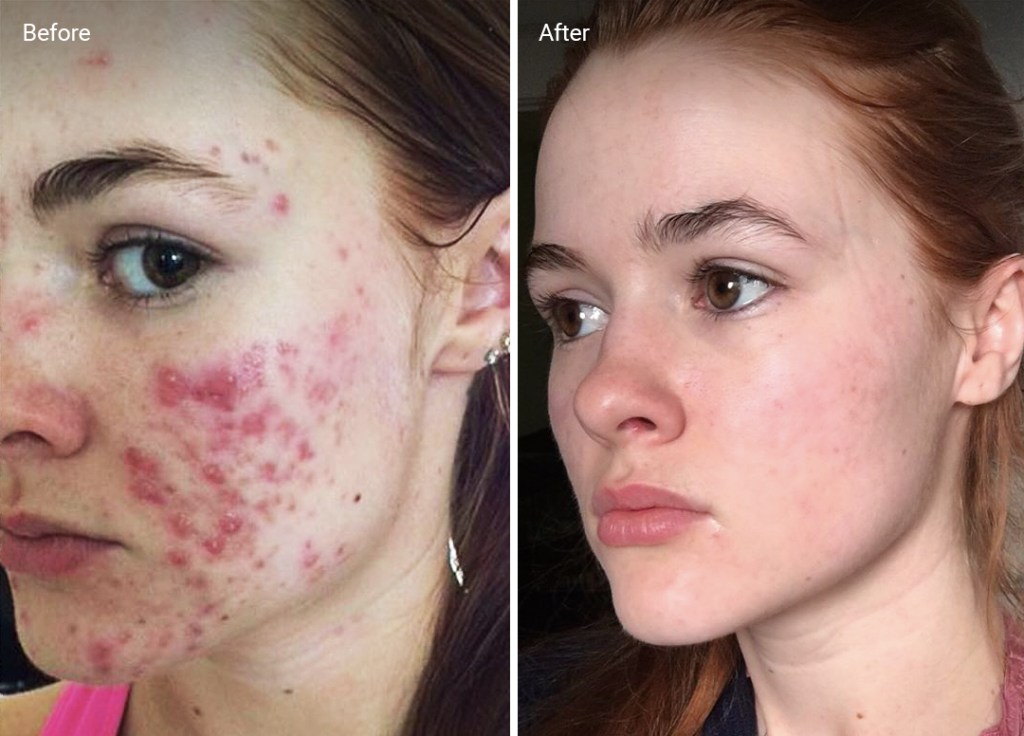 Accutane for Acne: How to Use It, Safety, Side Effects and ...