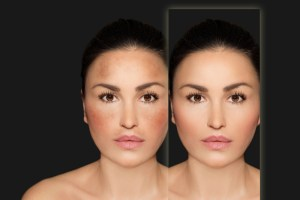 Hyperpigmentation Causes