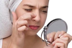 nose acne