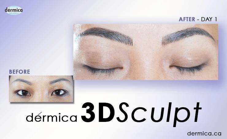 Dermica MedEsthetics 3D SCULPT