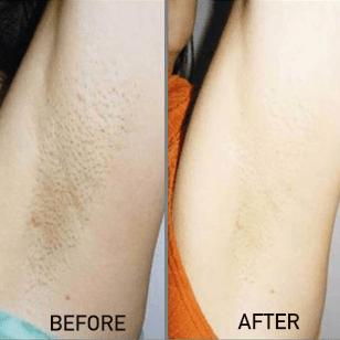 IPL laser hair removal