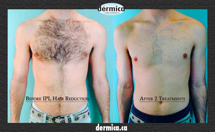 Mens Laser Hair Removal Edmonton Ipl Hair Reduction