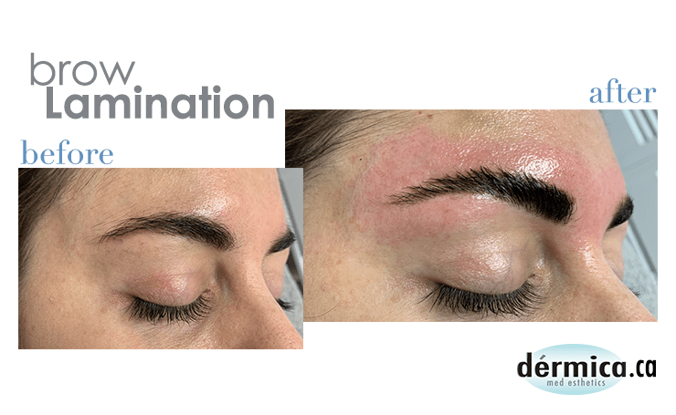 Brow Lamination Before and After (R).