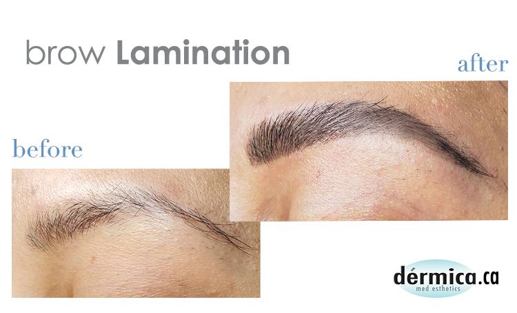 brow lamination faqs