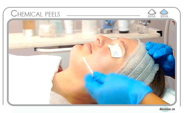 dermica chemical peels edmonton