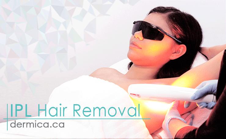 ipl hair removal yeg