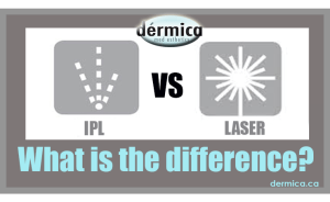 difference between laser and IPL