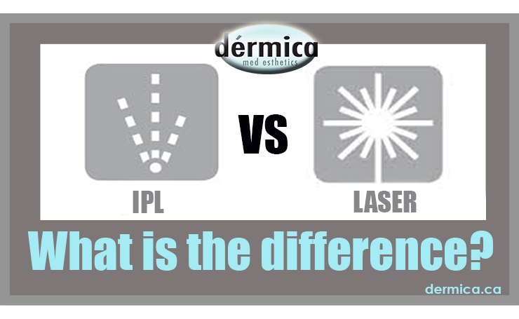 Dérmica- the difference between laser and IPL