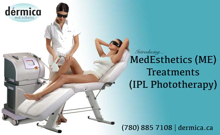 ipl photo therapy