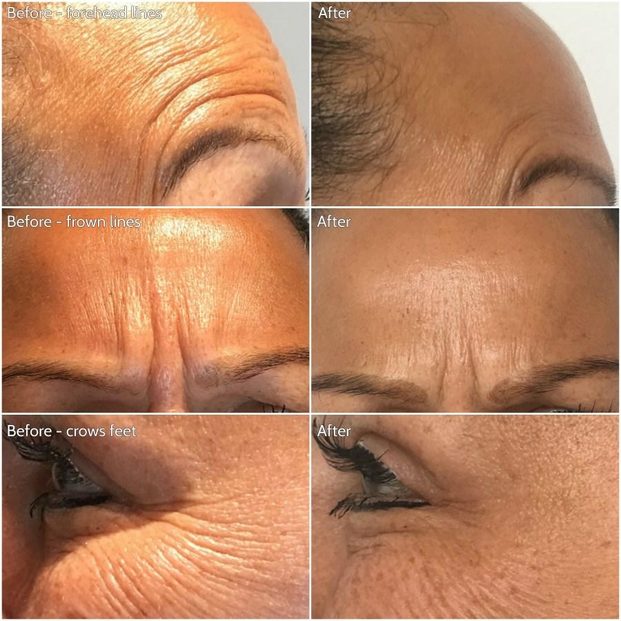 Botox triptich 210817