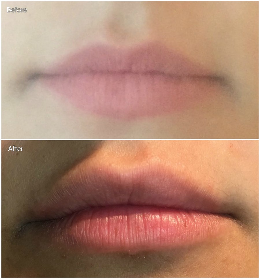 Lip filler before and after 080817