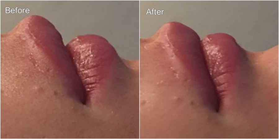 Lips2 before and after