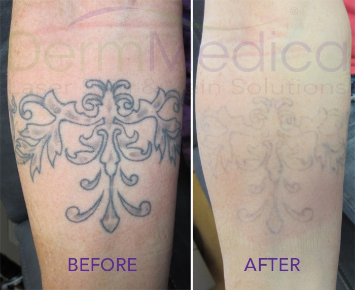 Looking To Cover Up An Old Tattoo With An New One? Laser
