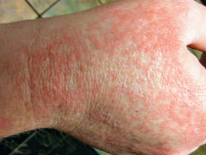 Covid 19 Rash On Legs