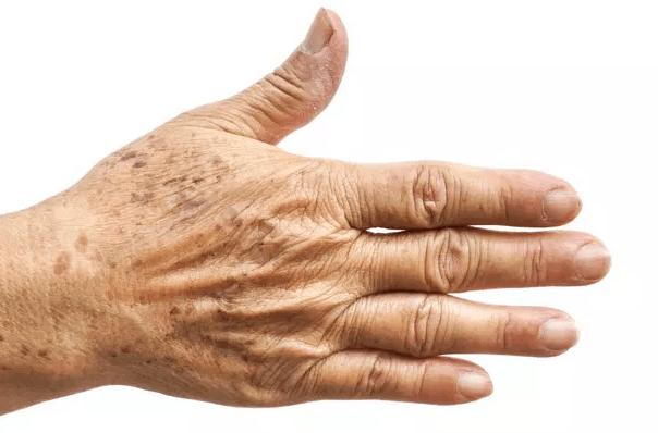Aging Hands - Treatment